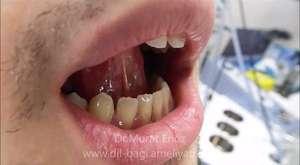 Dil Bağı (Tip III) Ameliyatı Öncesi ve Sonrası