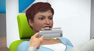 dişevi 'implant animasyon'