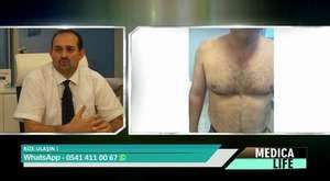 Dr Mehmet İlteber BAHADIR Sedef Hastalığı
