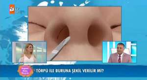 Open Technique Nose Tip Lifting + Septoplasty Operation