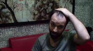 Protez saç bilgi