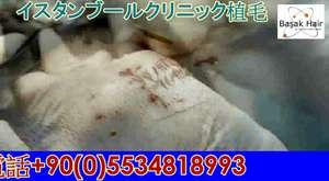 イスタンブールクリニック,抜け毛 ,育毛 ,七面鳥を代表する植毛専門クリニック