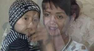 Özbek çocuk biyonik kulak ile duyuyor